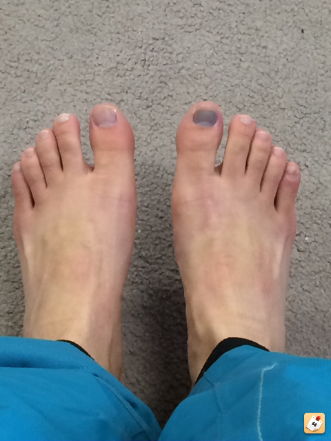 Owie - what to do about toe bang? | TheSkiDiva.com