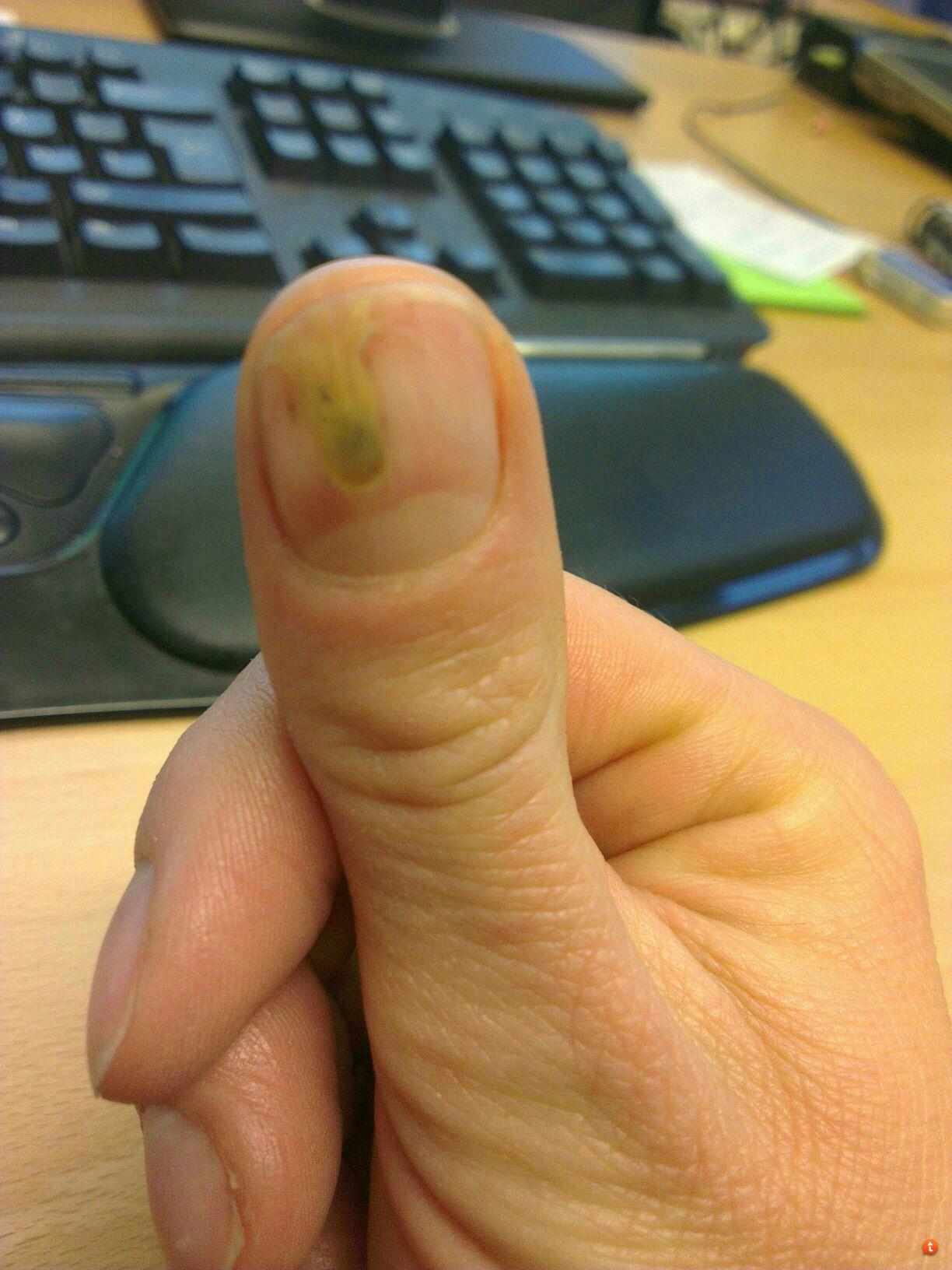 betændelse i fingernegl