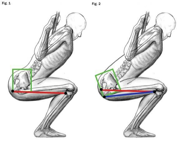 rehabträning muskelbristning baksida lår