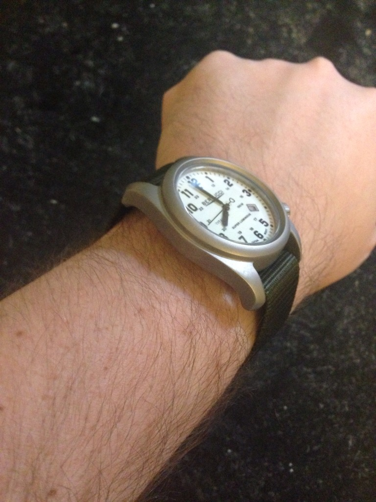 Watch marks on wrist - The Focus On My Phone Camera Is Shot But This Shows How It Fits On My Wrist Best