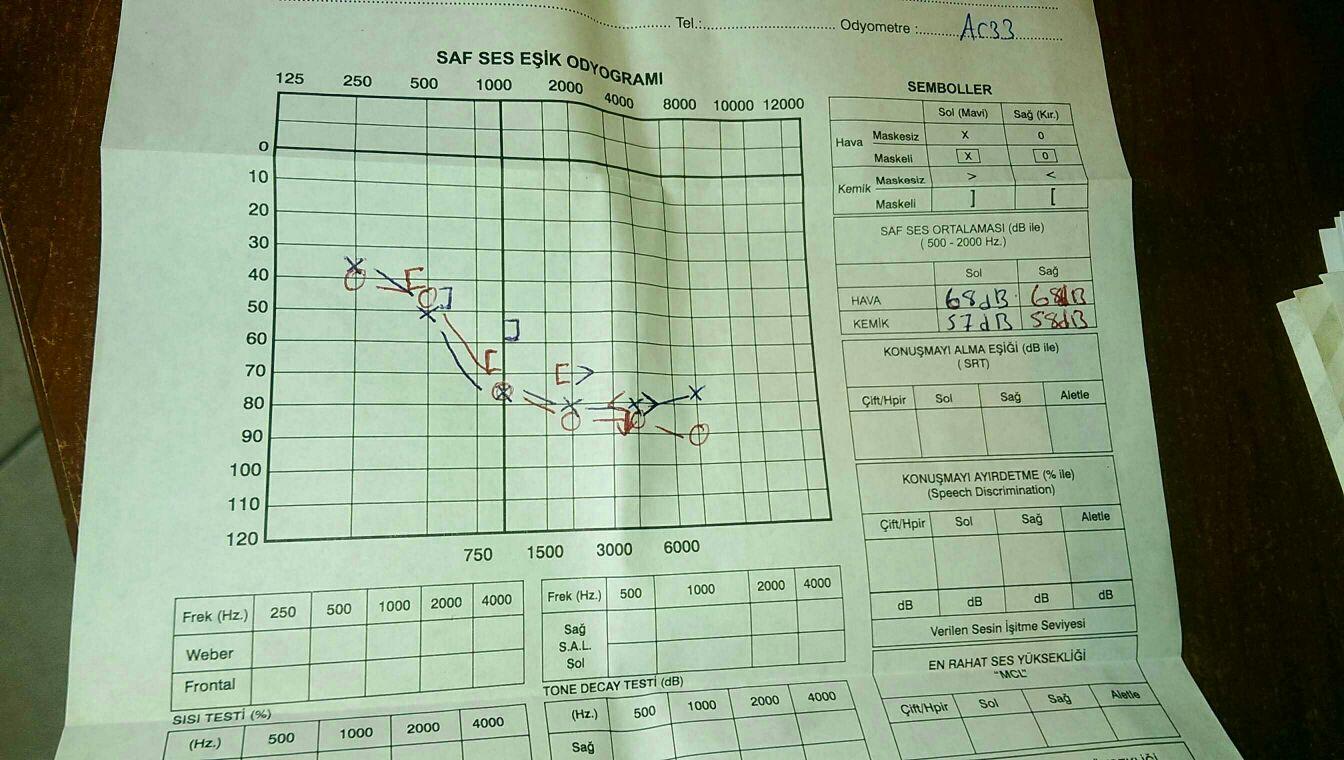 7db8f87a75c6dae1aa44e28e7e08aad1 - İşitme testinden özür oranı hesaplanması
