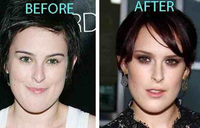 katfsih jaw reduction surgery before after - Page 2