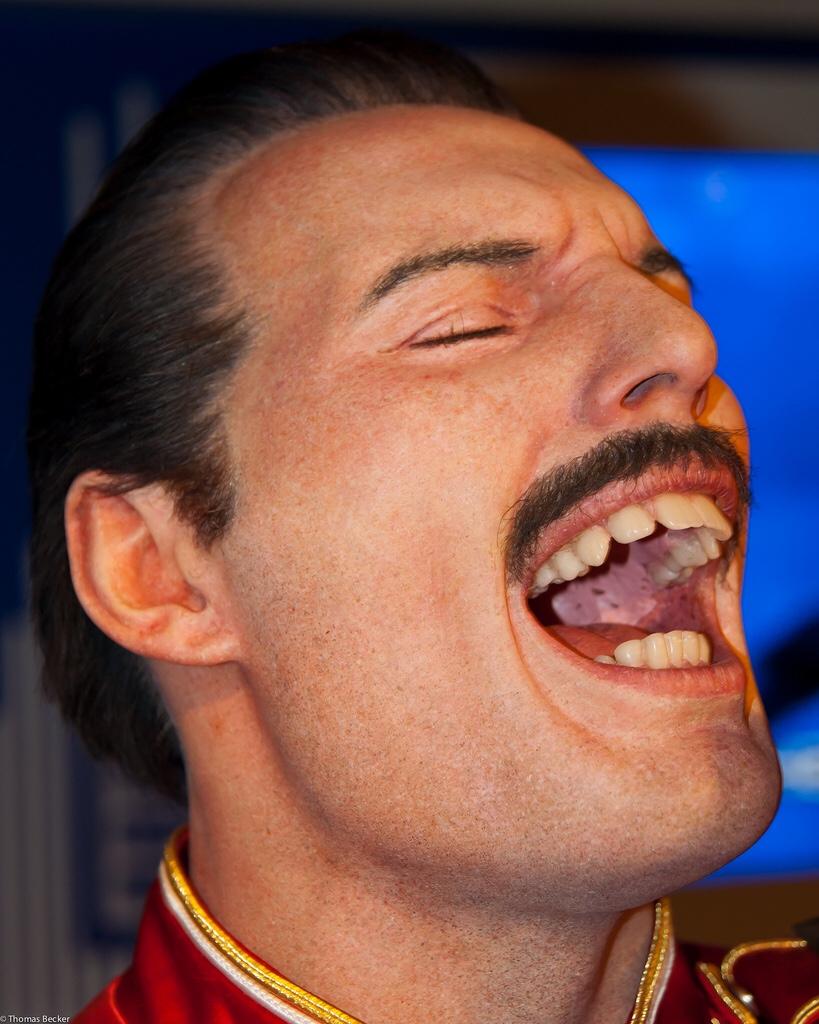 Фредди меркури почему такие зубы