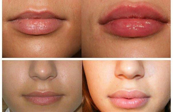 Форма губ для увеличения гиалуроновой