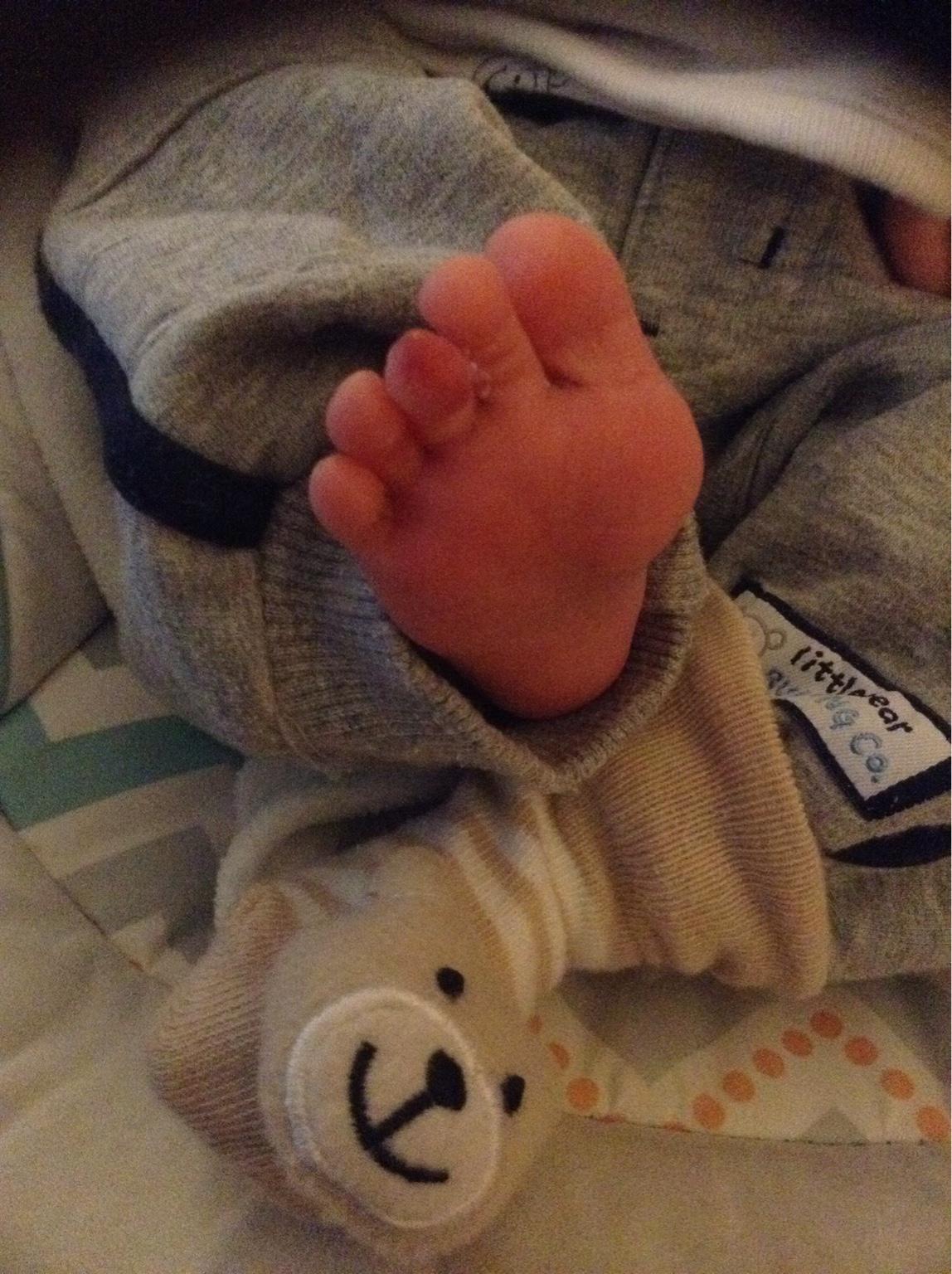 Birth marks | Netmums