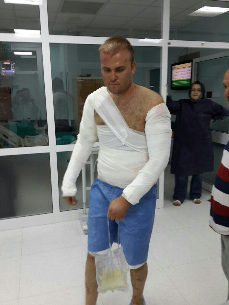 88f645a9e3138e8910eee52e9c6520d9 - İş kazasında vücudum yandı. Rapor oranı ve tazminat miktarı ne olur?
