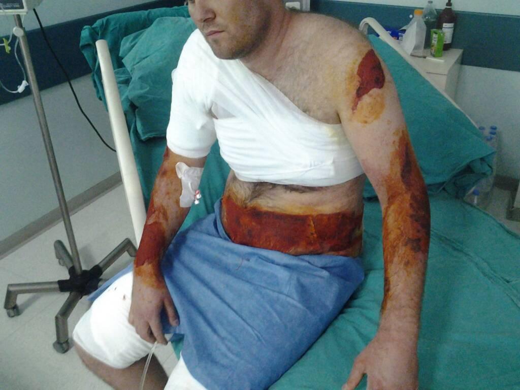 dcf16d25a7da504af133986d46d1f091 - İş kazasında vücudum yandı. Rapor oranı ve tazminat miktarı ne olur?