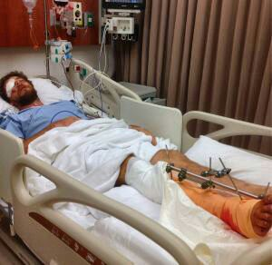 Australian Expat Peter Maitland Has Leg Amputated After Motorbike
