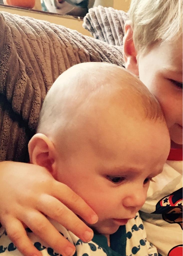 Gap Between Babys Skull Plates Netmums Chat