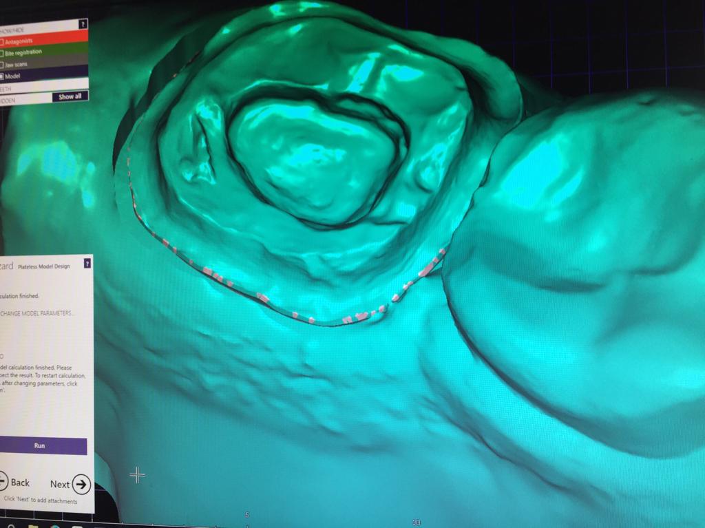 exocad Model Creator info | Page 7 | 3d Dental CAD/CAM forum