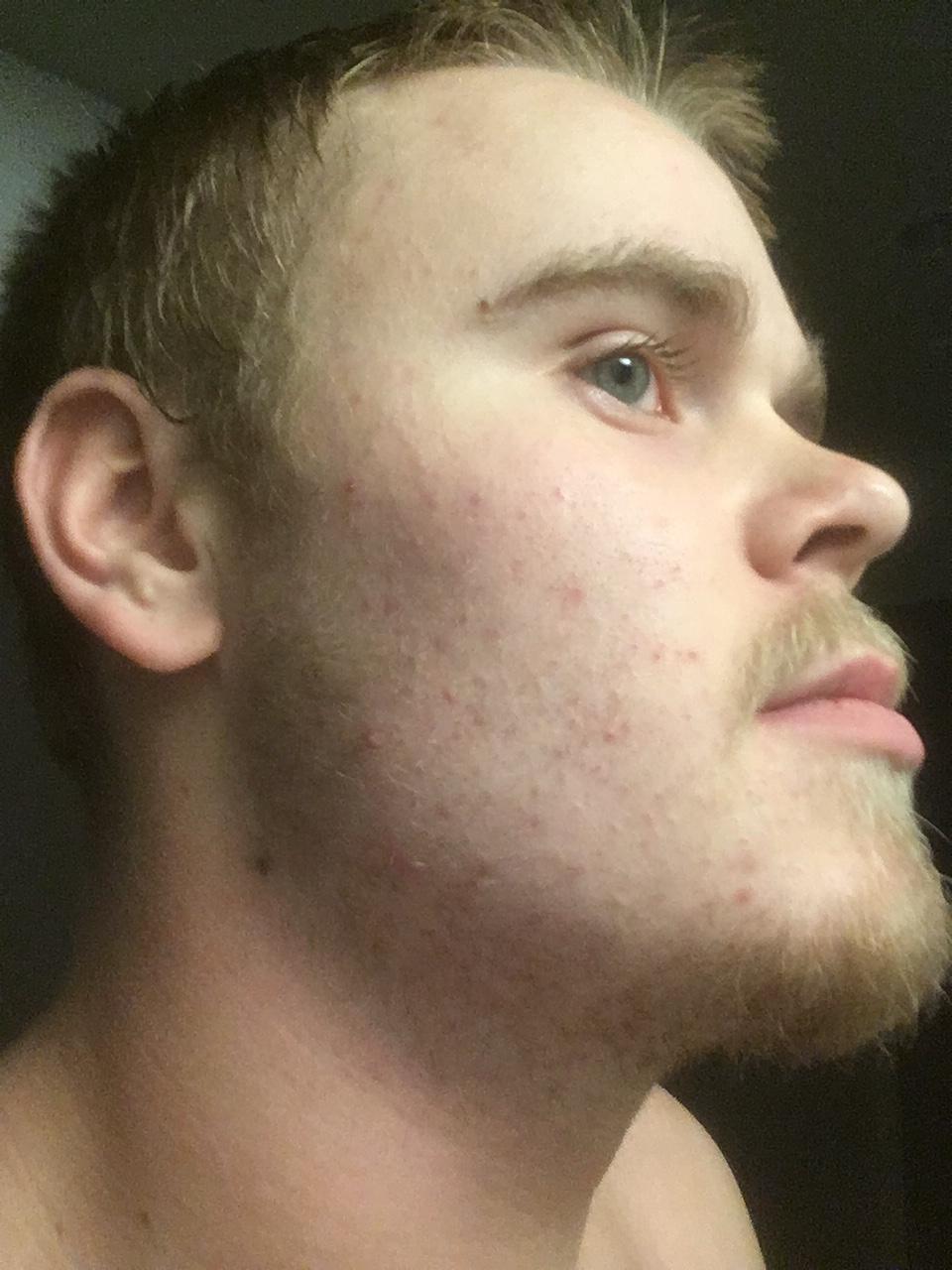 18 year old blonde beard - beard board