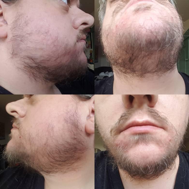 kan ik een baard laten groeien? | baardforum voor liefhebbers van