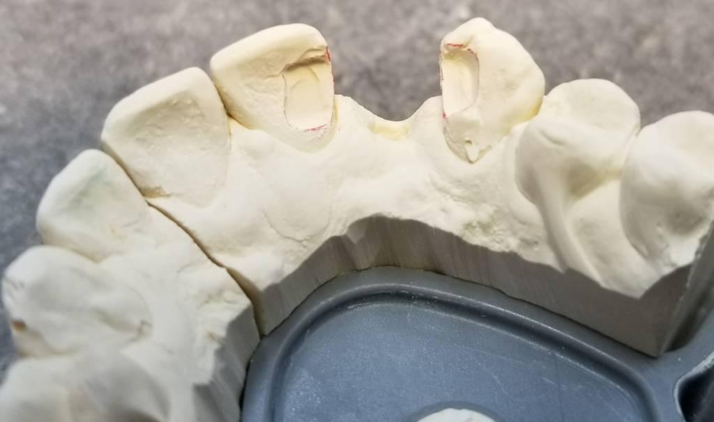 Bridge Prep Dental Code - Best Bridge In The World
