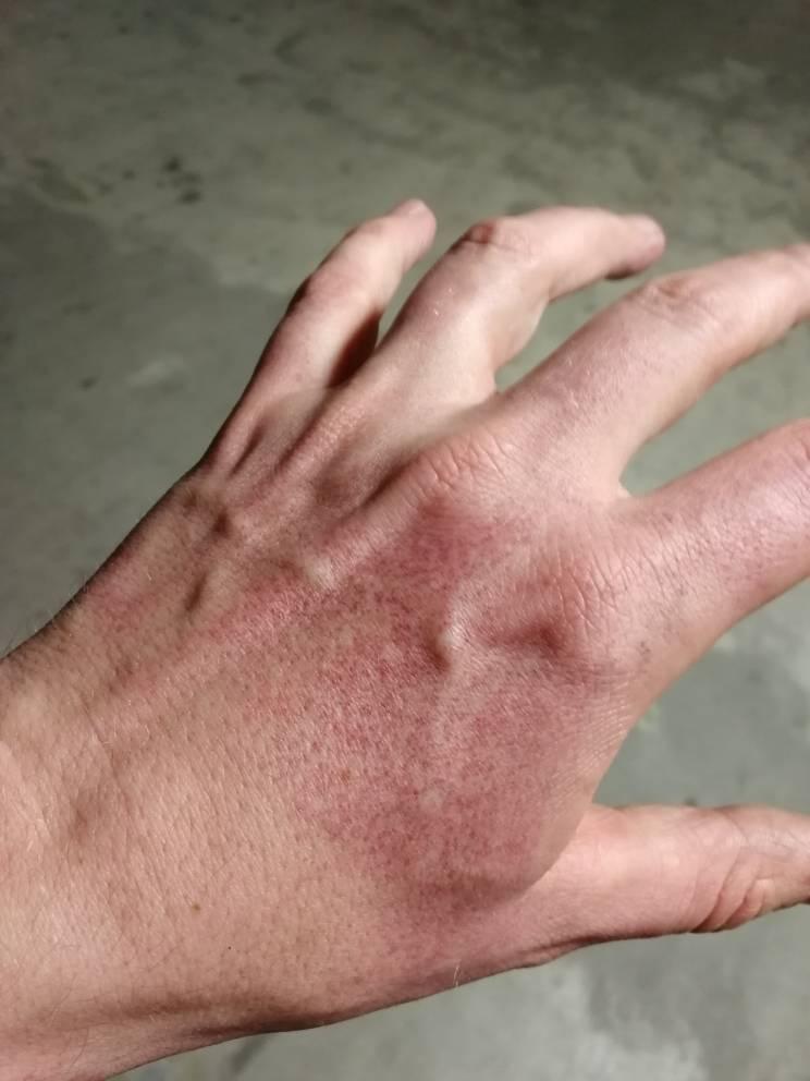 brustet blodkärl finger