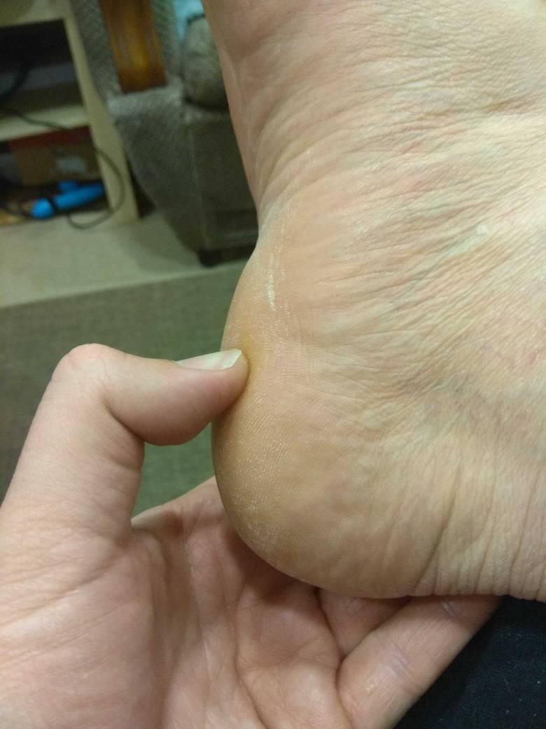 Dolor en el talon del pie derecho al levantarme