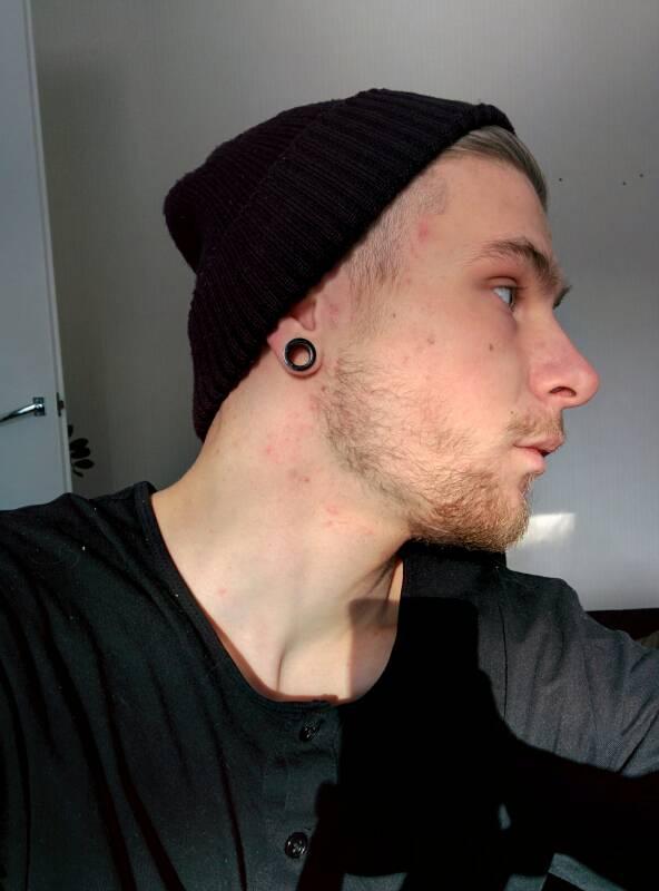 Nizoral Beard