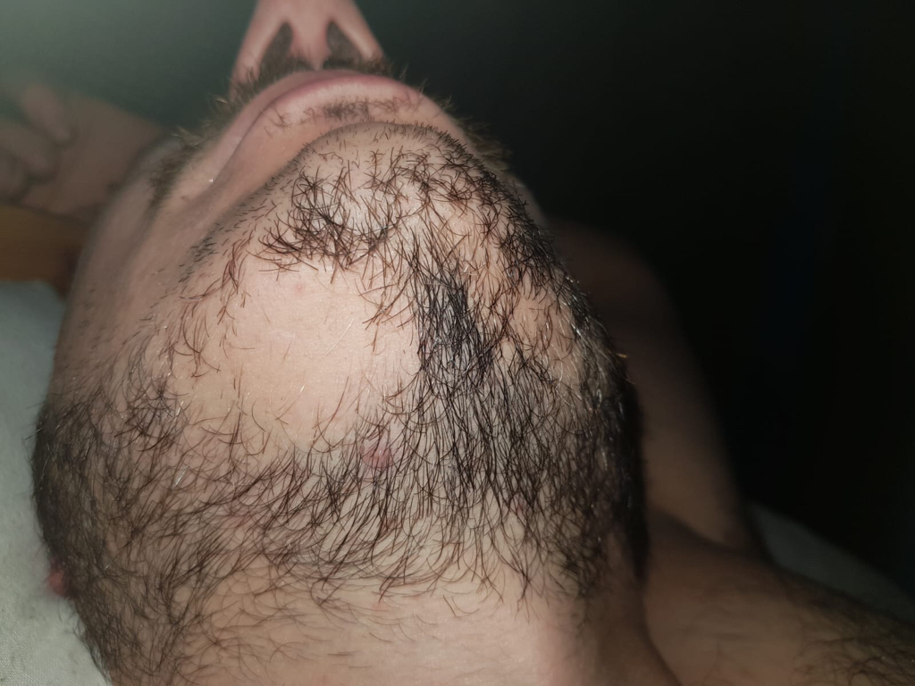 patch of hair missing in beard