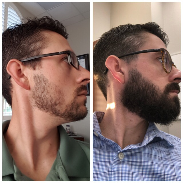 Patchy Beard Success Stories Before And After Photos Page 29 Beard Board