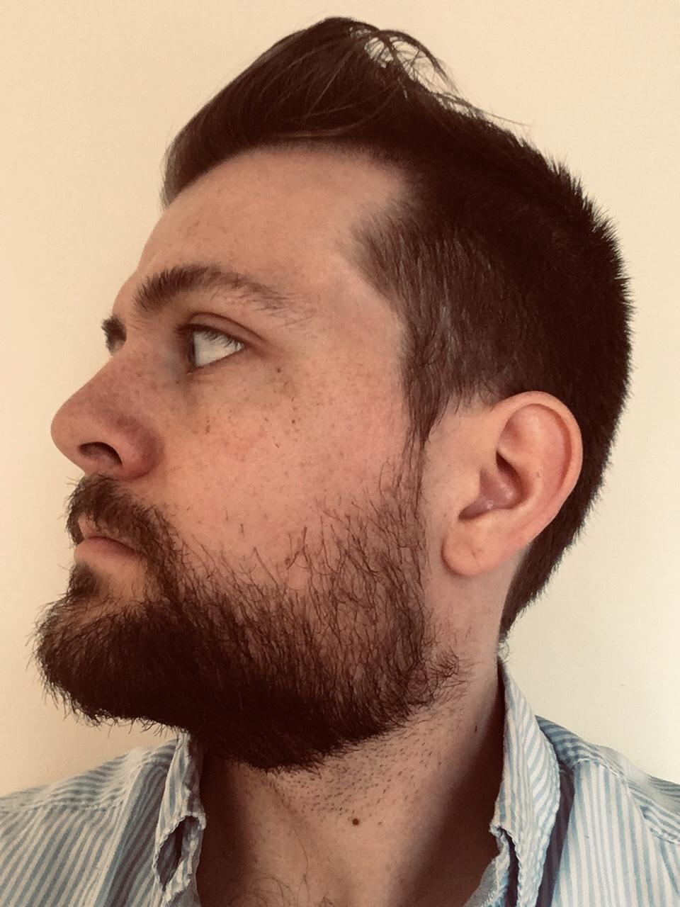 28 y/o - 15 Week Journey [ 10 Week Update ] - Page 5 - Beard Board