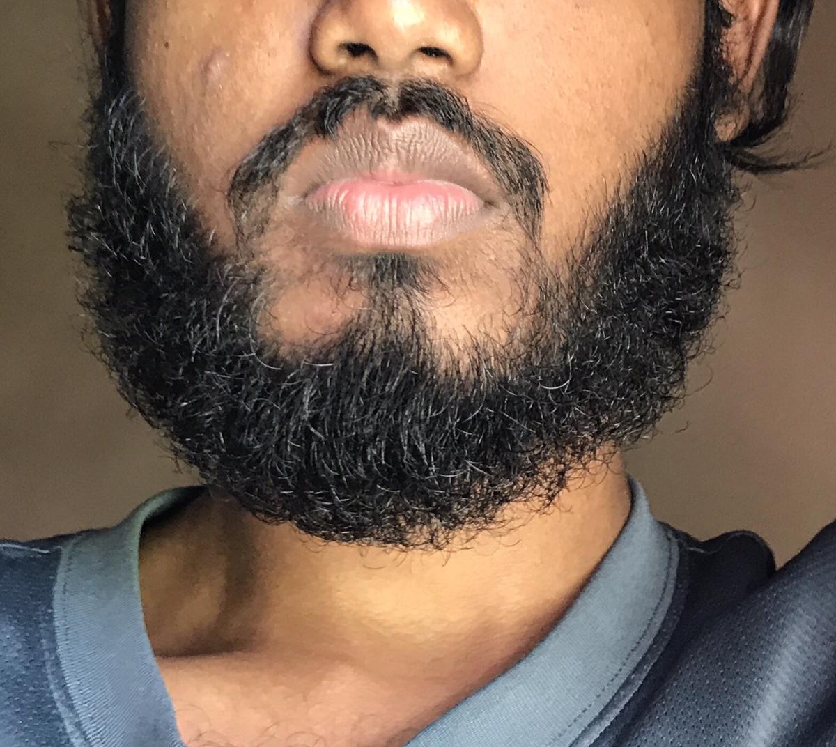 19 year old  Any advice? - Beard Board