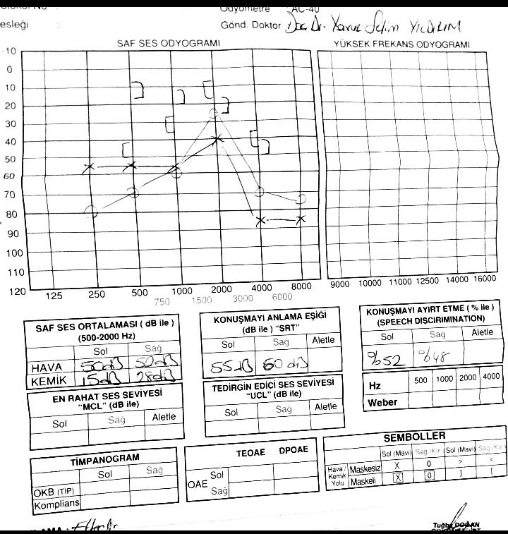 80b45b8f5cf7a793af46fba7d6aed6cb - İşitme testinden özür oranı hesaplanması